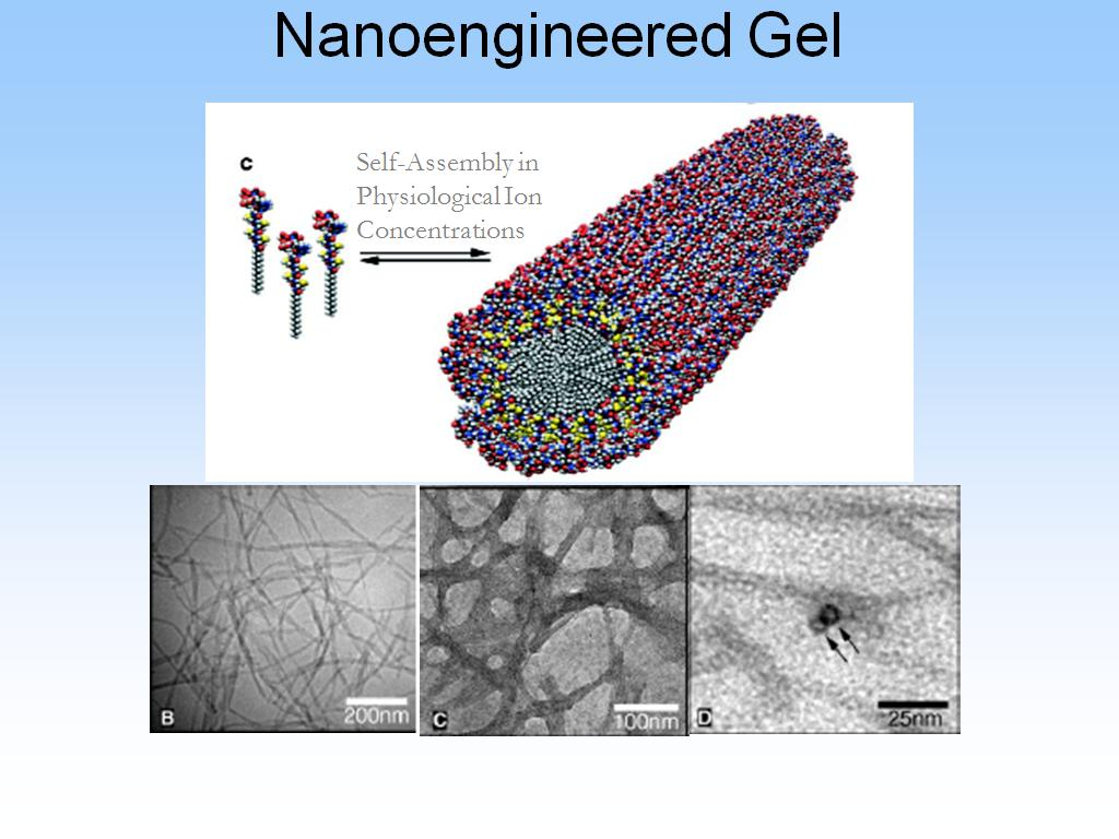 Nanoengineered Gel
