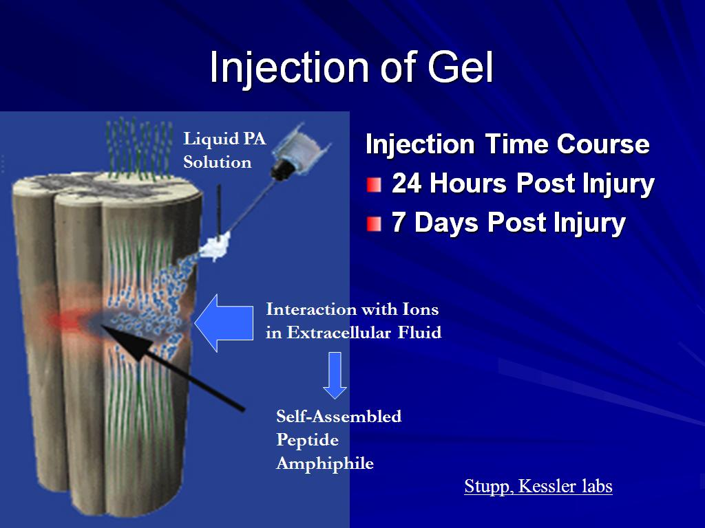 Injection of Gel