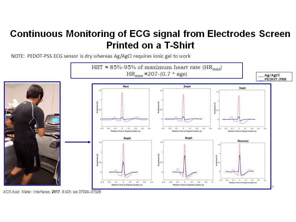 Continuous Monitoring of ECG signa